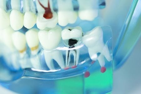 Painless Root Canal Treatment Orange County
