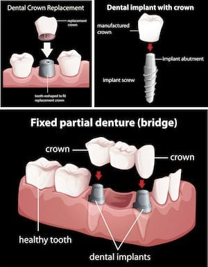 Laguna Woods Dental Crowns Orange County
