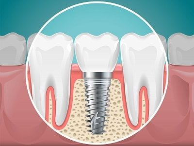 Orange County Implant Dentistry Anaheim