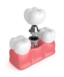 Best Anaheim Implant Dentistry