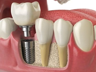 Ladera Ranch Dental Implants Orange County
