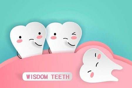 Orange County Wisdom teeth removal