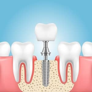 Laguna Woods Implant Dentist